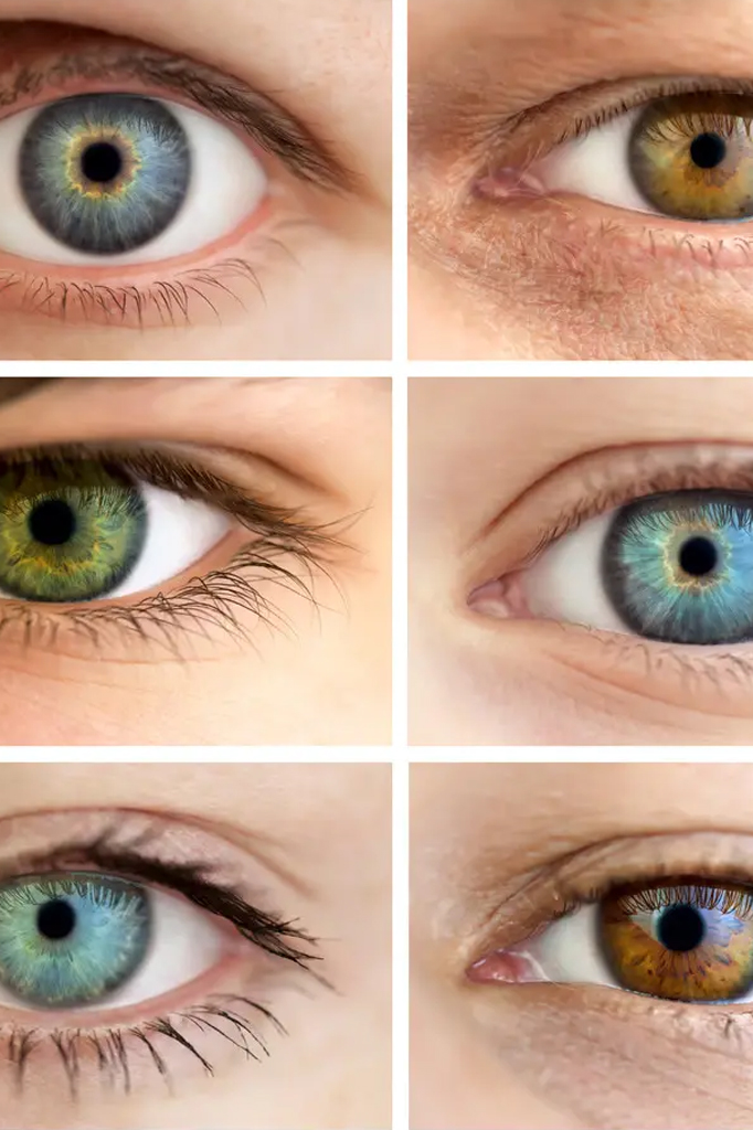 How to choose your Lasik surgeon