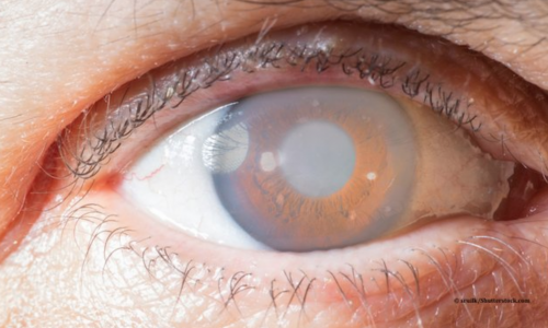 Glaucoma in eye_3